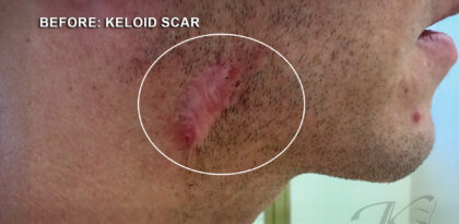 Keloid Before & After Patient #12768