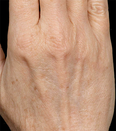 Hand Rejuvenation Before & After Patient #12305
