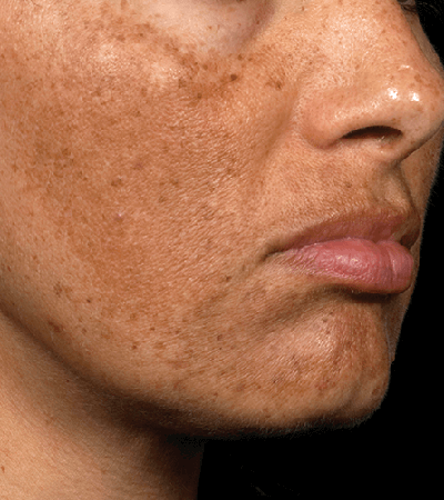 Fraxel Laser Therapy Before & After Patient #12311