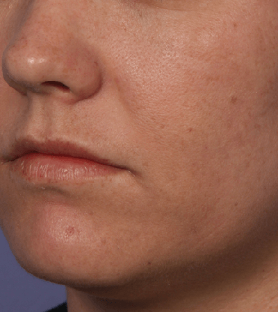 Fraxel Laser Therapy Before & After Patient #12317
