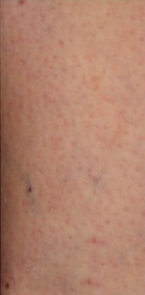 Sclerotherapy Before & After Patient #12449