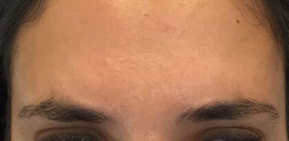 Frown Lines Before & After Patient #12885