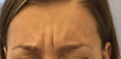 Frown Lines Before & After Patient #12870