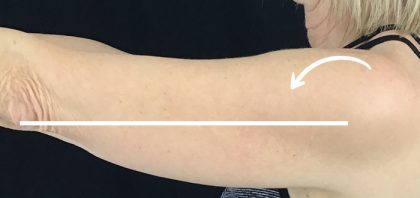 CoolSculpting Before & After Patient #13536