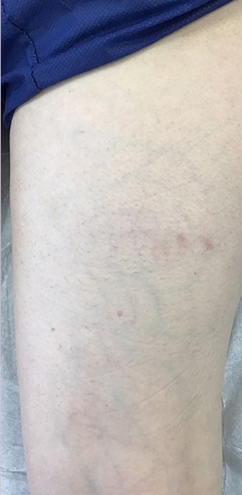 Sclerotherapy Before & After Patient #13268