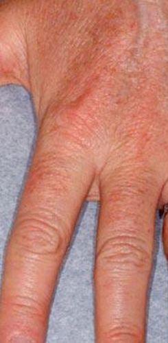Hand Rejuvenation Before & After Patient #13272