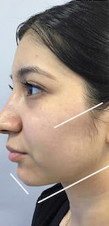 Jawline Contouring Before & After Patient #13034