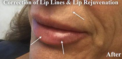 Lip Augmentation Before & After Patient #13495