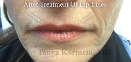 Lip Augmentation Before & After Patient #13498