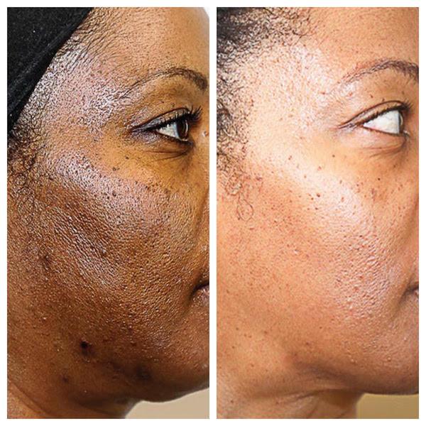 skin peel damage monica santa medical chemical