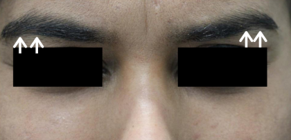 Thread Lift Before & After Patient #13819